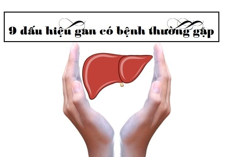 9 dấu hiệu gan có bệnh thường gặp