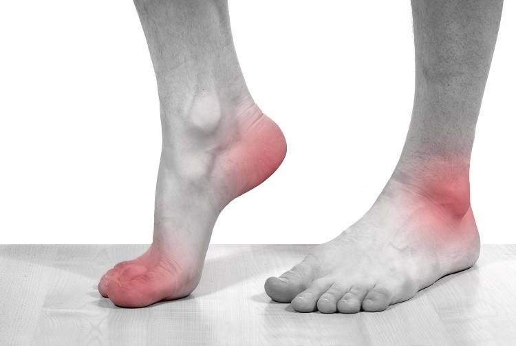 Nguyên nhân và dấu hiệu nhận biết bệnh Gout
