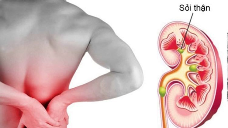 Sỏi thận - căn bệnh diễn biến âm thầm gây nguy hiểm tới sức khỏe
