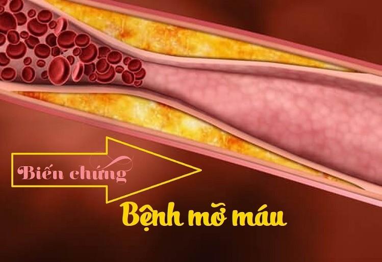 Ám ảnh với 5 biến chứng của bệnh mỡ máu cực kỳ nguy hiểm