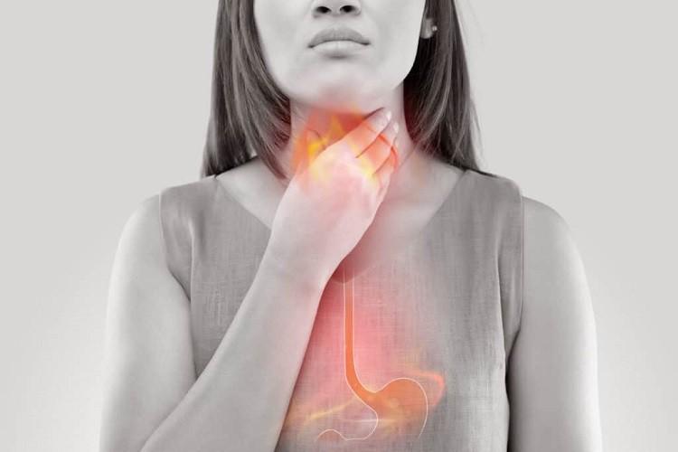 Tất tần tật về bệnh trào ngược dạ dày mà bạn cần biết