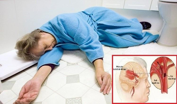 Phân biệt tai biến mạch máu não và đột quỵ