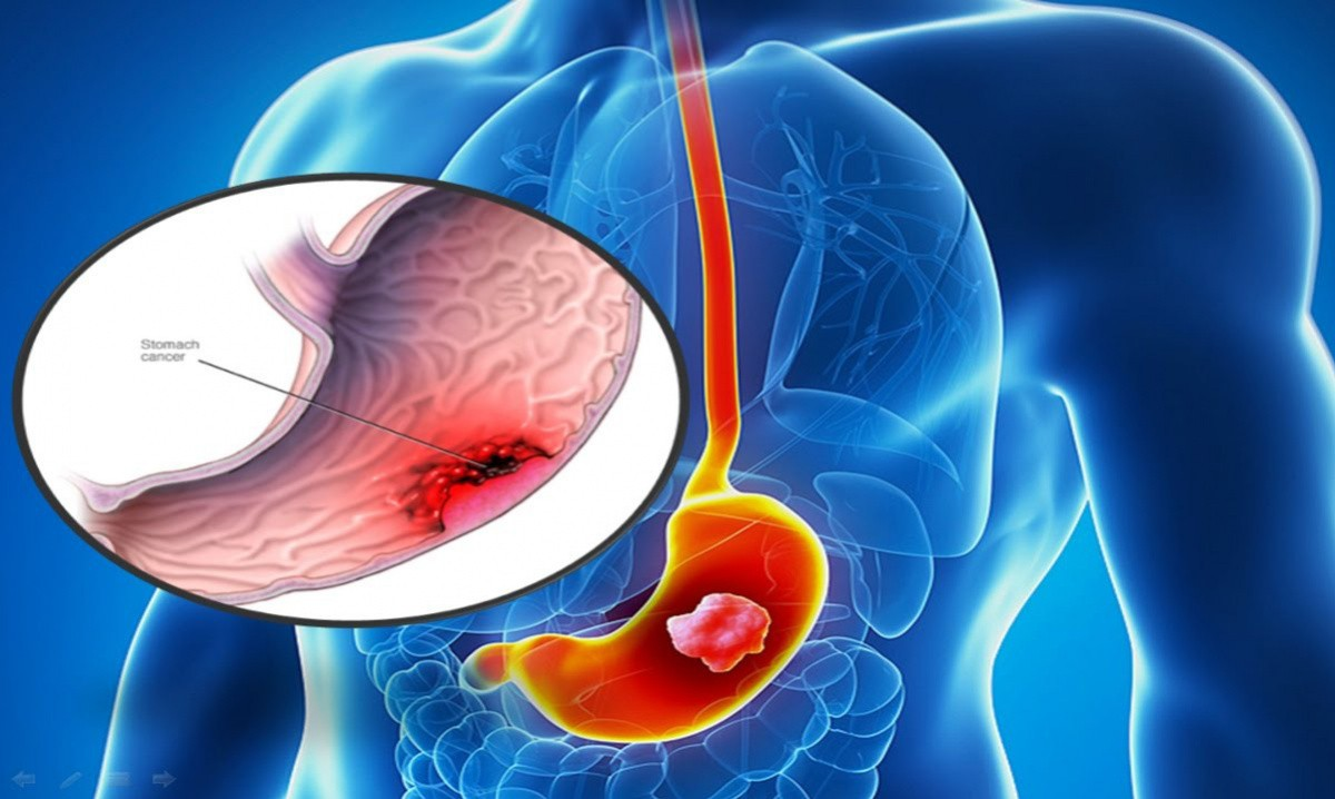 Xuất huyết dạ dày là bệnh gì? Bật mí chữa xuất huyết dạ dày tại nhà