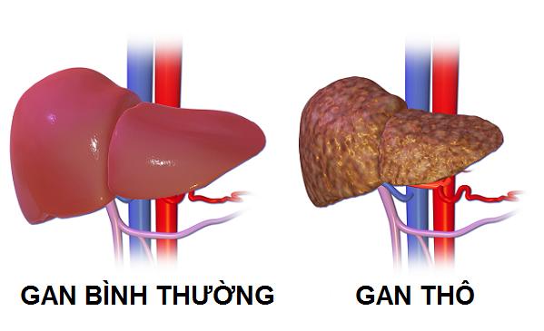 Nhu mô gan thô là gì? Những điều bạn cần biết về nhu mô gan thô