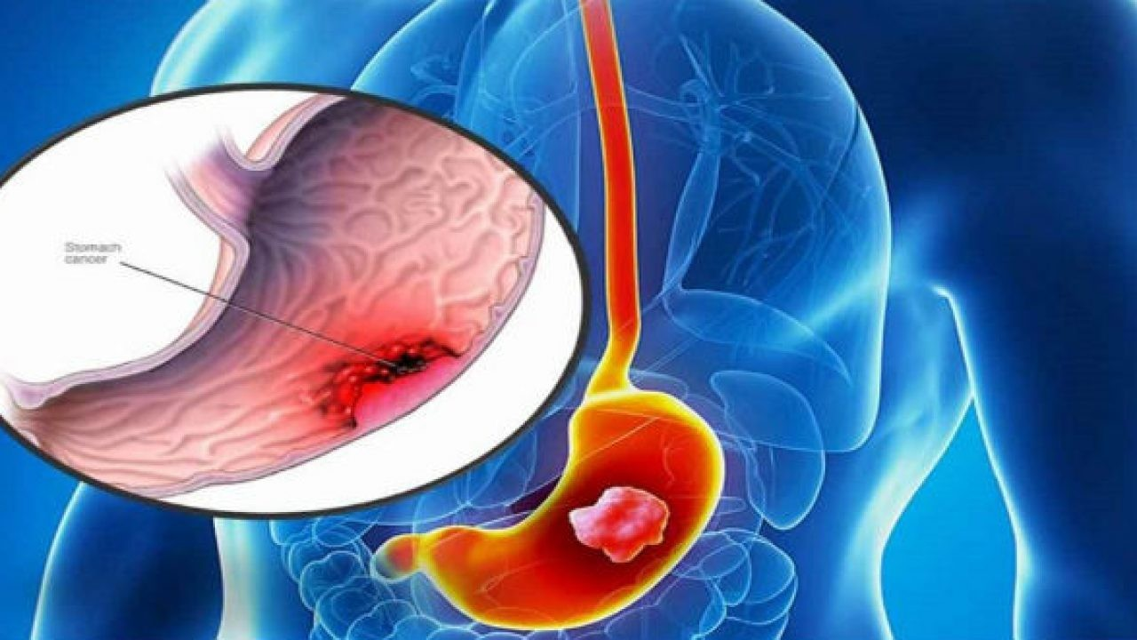 Bệnh viêm niêm mạc dạ dày là gì? Có nguy hiểm không?