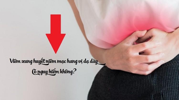 Viêm xung huyết niêm mạc hang vị dạ dày có nguy hiểm không?