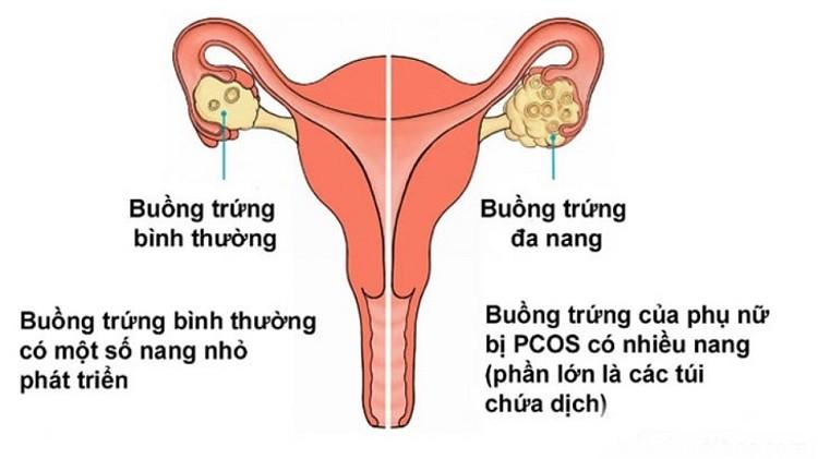 Do hội chứng bồi trứng đa nang