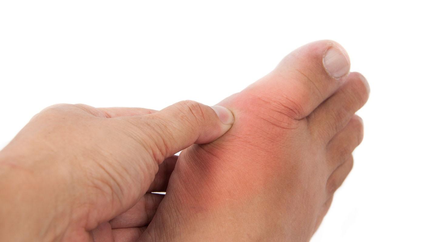 Gout hay Gút là hội chứng rối loạn chuyển hóa các chất