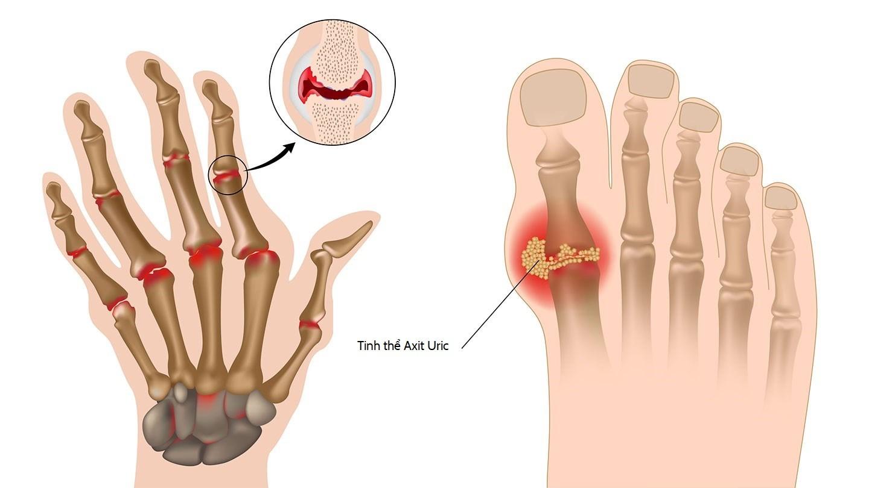 Gout thường xuất hiện khi cơ thể dung nạp quá nhiều chất đạm, protein
