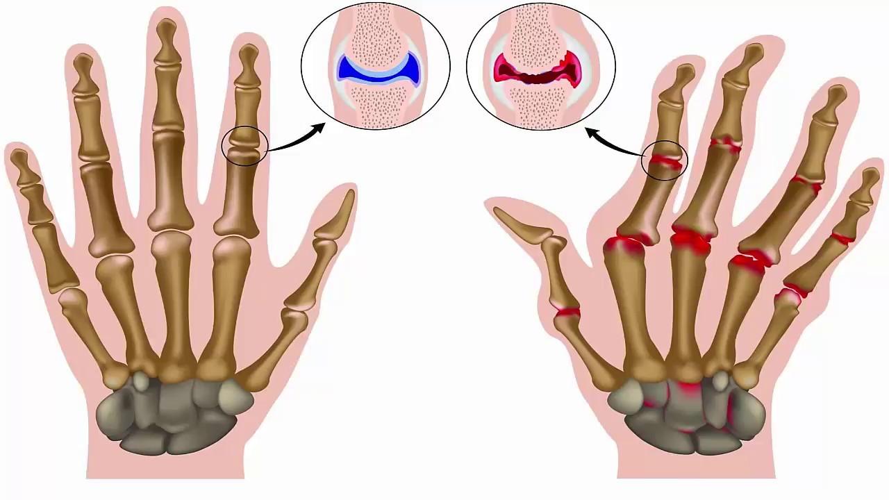 Viêm khớp dạng thấp là một trong những bệnh thường hay gặp nhất ở người già