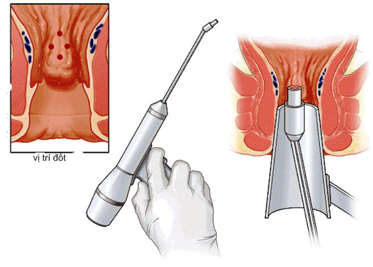 điều trị trĩ ngoại khoa