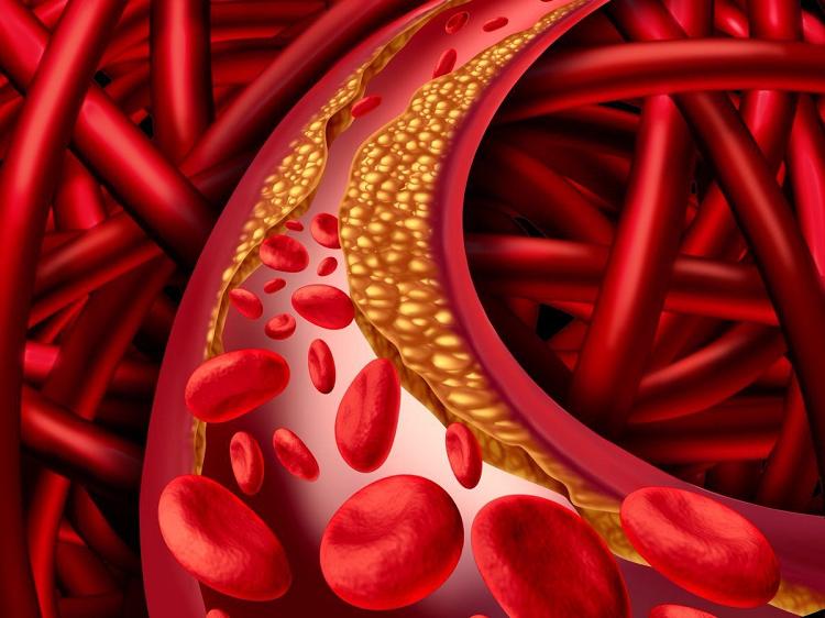 Bệnh mỡ máu thường không có biểu hiện triệu chứng