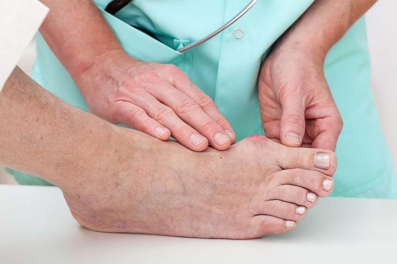 Gout là triệu chứng của rối loạn chuyển hóa acid uric trong máu