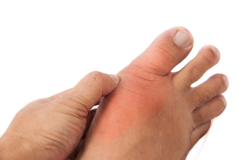 Nam giới có xu hướng dễ bị bệnh Gout hơn nữ giới