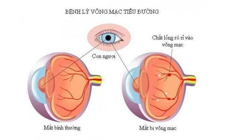 Tiểu đường biến chứng ở mắt