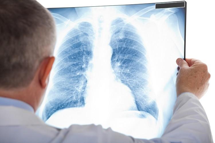 Tiểu đường biến chứng vào phổi