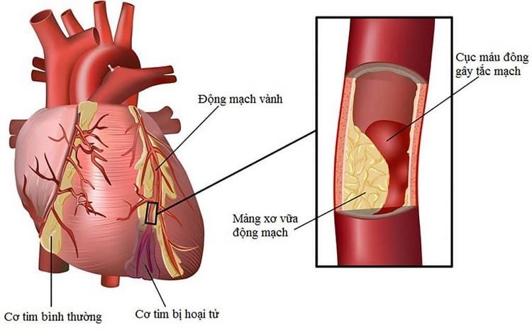 Biến chứng tiểu đường ở tim mạch