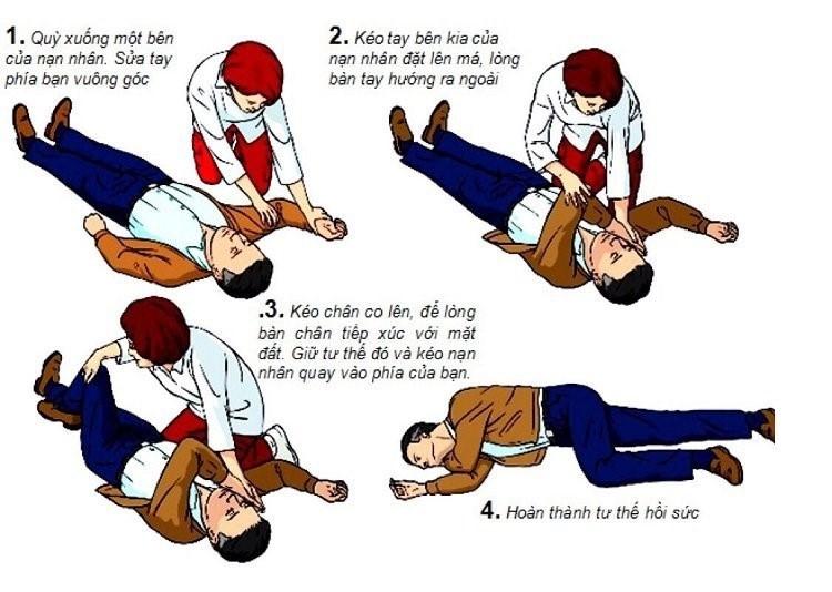 Cách sơ cứu người bị đột quỵ