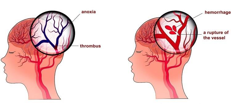 Tai biến mạch máu não cần được hiểu biết đúng đắn