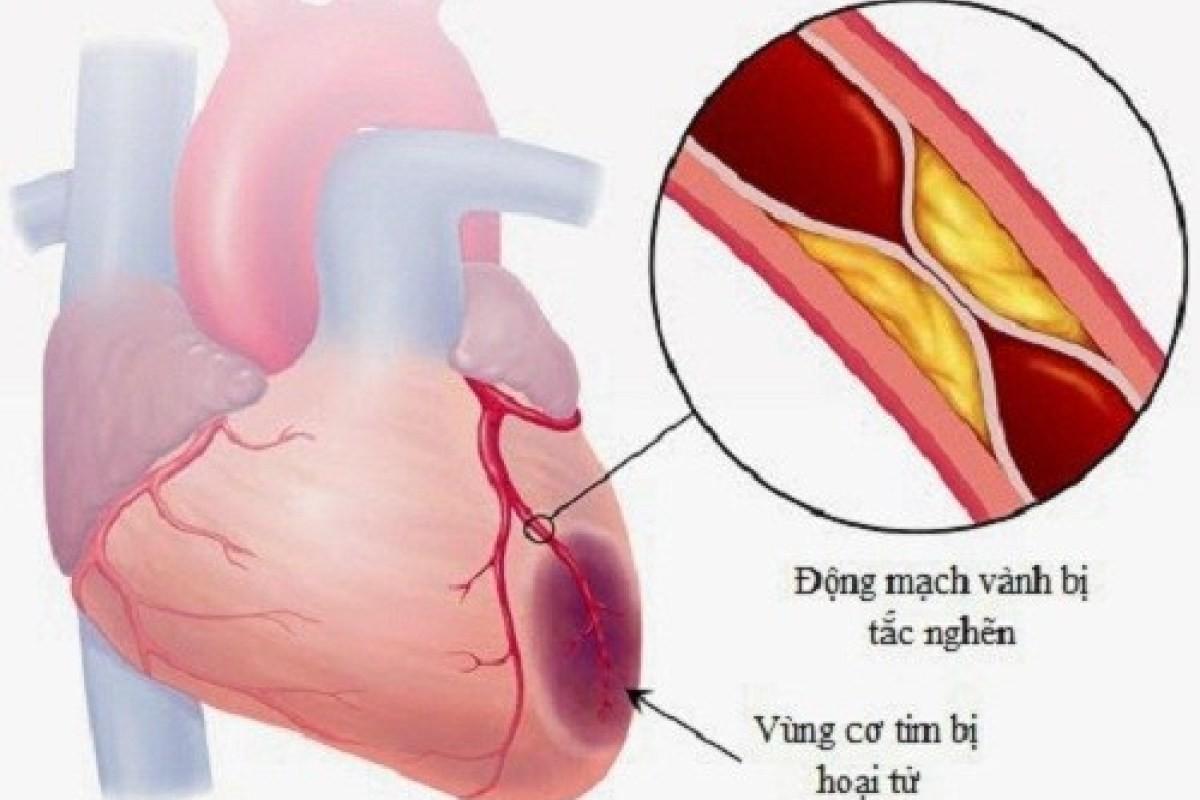 Nhồi máu cơ tim