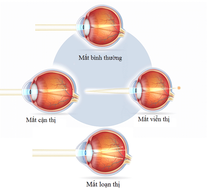 Các tật khúc xạ mắt