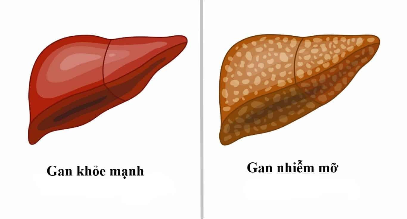 gan nhiễm mỡ độ 2 là gì, gan nhiễm mỡ nhẹ là gì, bệnh gan nhiễm mỡ là gì, gan nhiễm mỡ s3 là gì, gan nhiễm mỡ s1 là gì, gan nhiễm mỡ là bị gì, thuốc gan nhiễm mỡ là gì, gan nhiễm mỡ độ 1 là gì, chỉ số gan nhiễm mỡ là gì, triệu chứng gan nhiễm mỡ là gì, bị gan nhiễm mỡ là gì