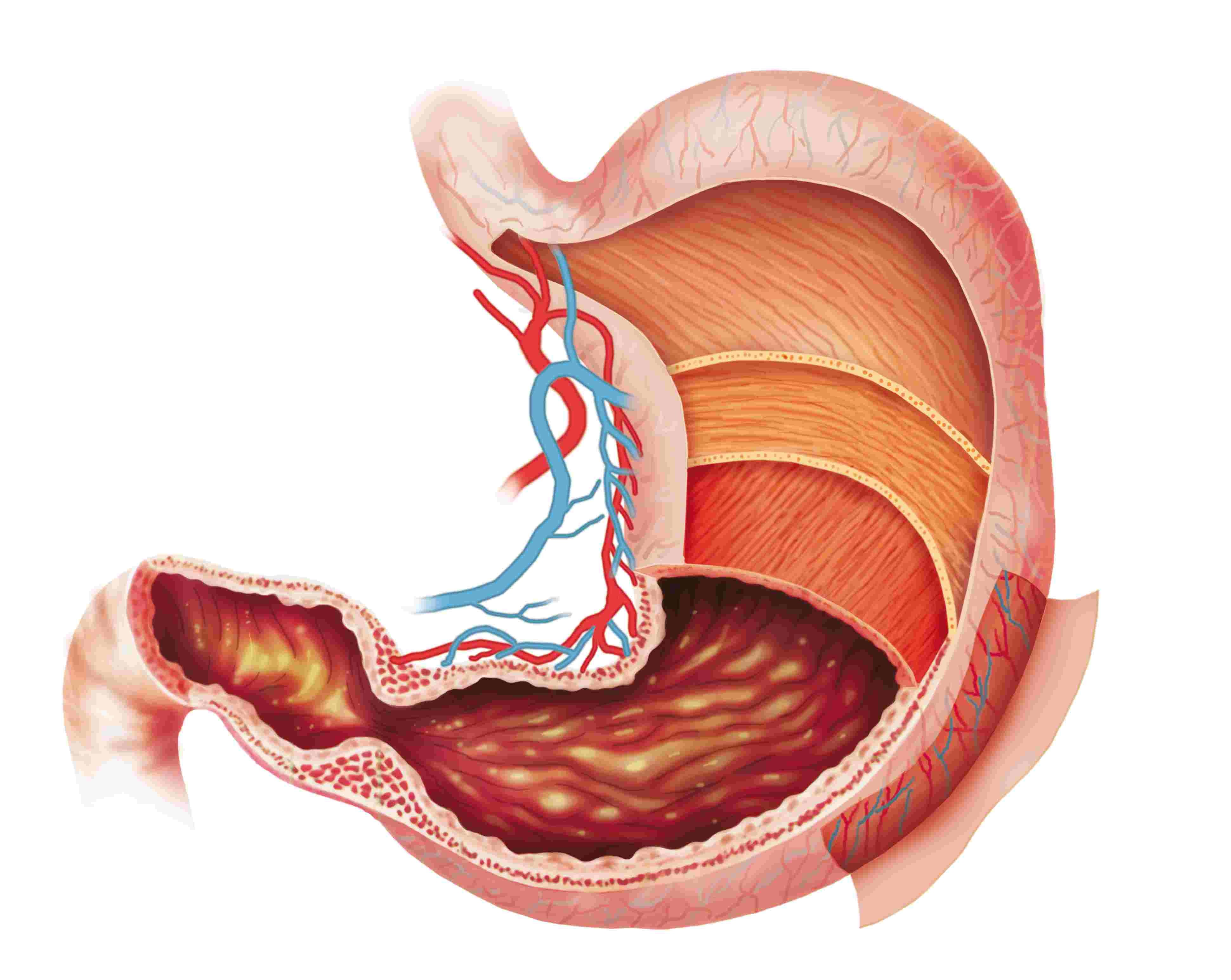 xuất huyết dạ dày là gì, xuất huyết dạ dày là như thế nào, xuất huyết dạ dày là bệnh gì, xuất huyết dạ dày là sao, viêm xuất huyết dạ dày là gì, chữa xuất huyết dạ dày tại nhà, điều trị xuất huyết dạ dày tại nhà, cách chữa xuất huyết dạ dày tại nhà