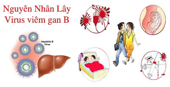 bệnh viêm gan B mạn là gì, bệnh viêm gan siêu vi b là gì, người lành mang bệnh viêm gan B là gì, bệnh viêm gan virus b mạn là gì, bệnh viêm gan B là bệnh gì, bệnh viêm gan B là gì, bệnh viêm gan B biểu hiện, bệnh viêm gan B dấu hiệu, bệnh viêm gan B có nguy hiểm không, bệnh viêm gan B có điều trị được không, bệnh viêm gan B có chữa được k, bệnh viêm gan B và những điều cần biết, có chữa được bệnh viêm gan B không, bệnh viêm gan B có mang thai được không, bệnh viêm gan B có dễ lây không, bệnh viêm gan B lây lan như thế nào, bệnh viêm gan B có di truyền